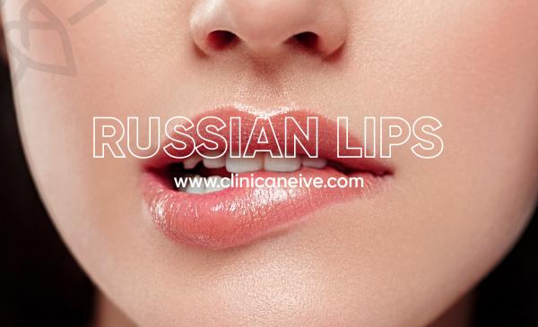 labios rusos